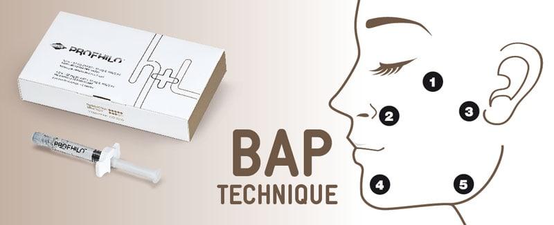 Profhilo Bap Techniek