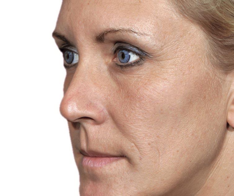 Jukbeenderen voor