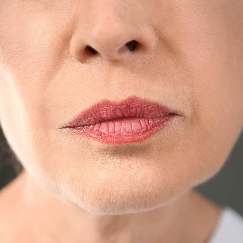 rokerslijntjes-after