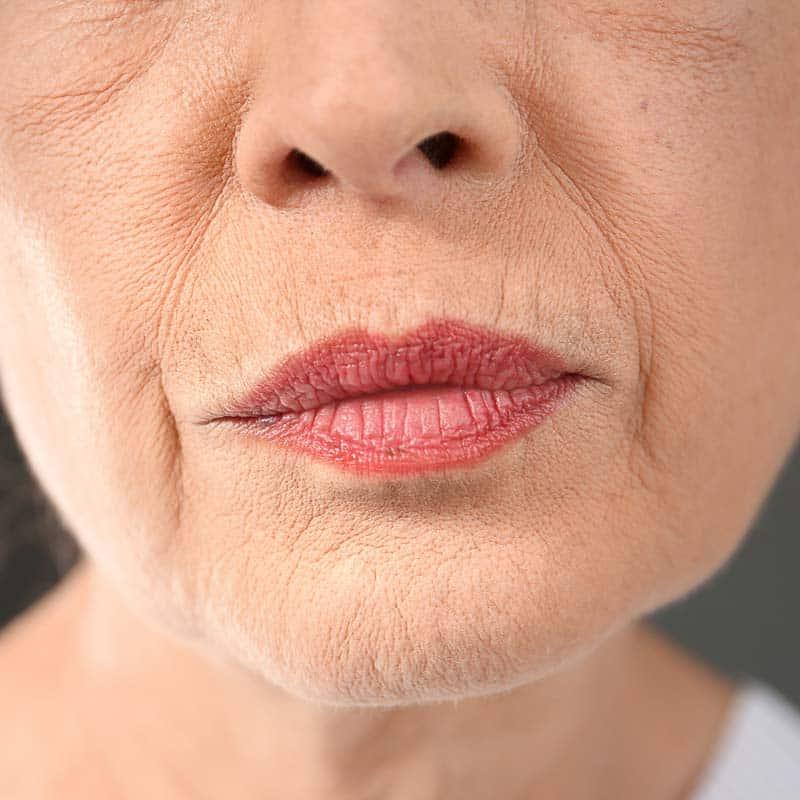 rokerslijntjes-before